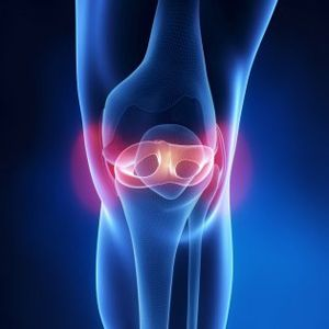 Chirurgie orthopédique - Dr Puch
