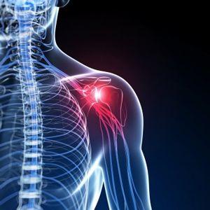 Chirurgie orthopédique - Dr Souquet